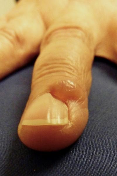 mucous-cyst-resized