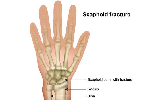 scaphoid-union-illustration