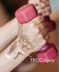 tfcc-injury-resized