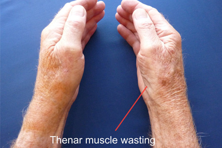 thenar-muscle-wasting-resized